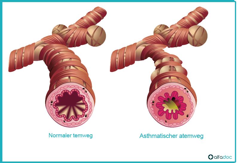Asthmatischer-atemweg